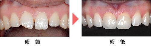 前歯の症例
